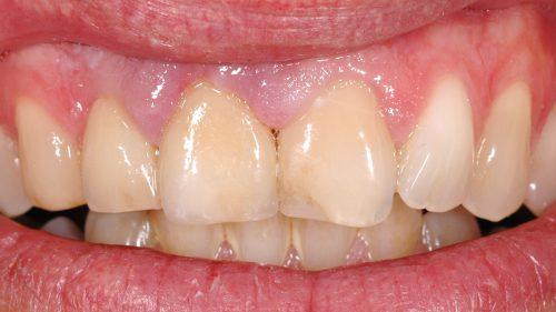 Tandtekniska-Laboratoriet-Fast-Protetik-efter-emax-11