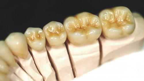 Tandtekniska-Laboratoriet-Fast-Protetik-monolitisk-zirkona