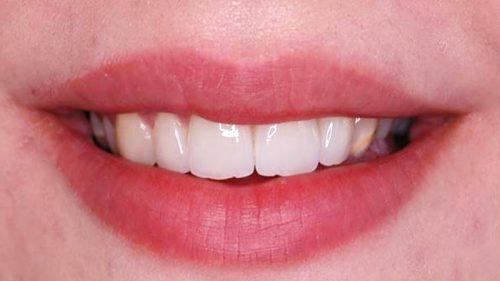 Tandtekniska-Laboratoriet-Fast-Protetik-skalfasad2