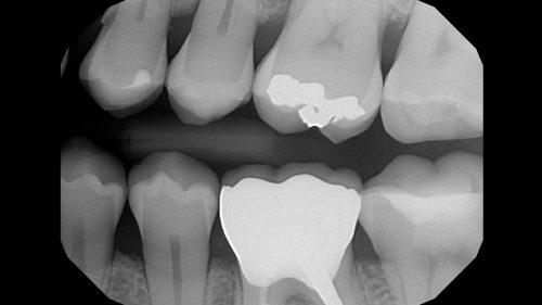 Tandtekniska-Laboratoriet-Fast-Protetik-36-zirkona-med-porslin