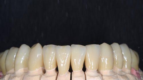 Tandtekniska-Laboratoriet-Fast-Protetik-zirkona