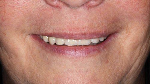 Tandtekniska-Laboratoriet-implantat-nr-2