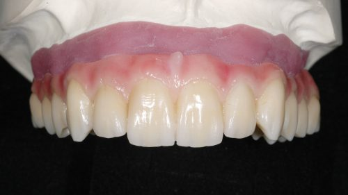 Tandtekniska-Laboratoriet-implantat-nr-8928