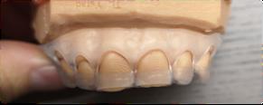 gingivektomiskena